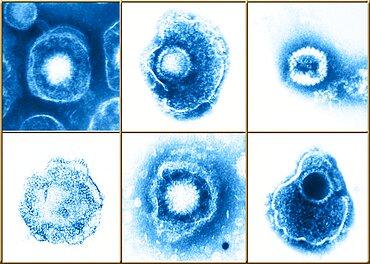 Herpesviridae Virus Family, Examples, TEM