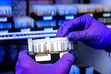Testing for COVID-19 Antibodies