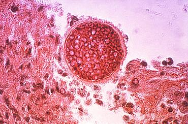 Coccidioidomycosis, Valley Fever, LM