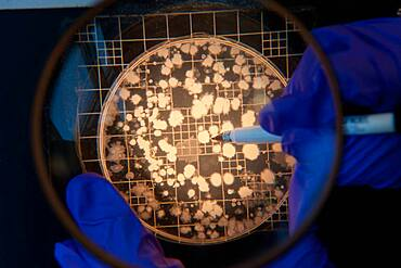Scientist counting cultures on a petri dish