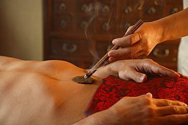 Chinese Moxabustion on navel, at the Spa Village at Ritz Carlton Hotel in Kuala Lumpur, Malaysia, Southeast Asia, Asia