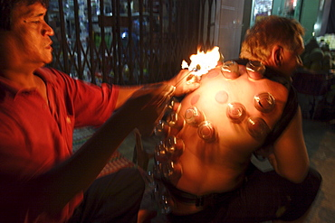 Fire cupping performed on a tourist, Can Tho, Vietnam, Indochina, Southeast Asia, Asia