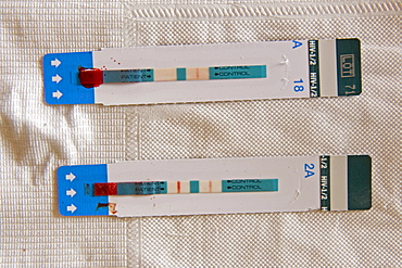 HIV test, a visual line at both the test and control sites indicates a positive test result, bottom, Quelimane, Mozambique, Africa