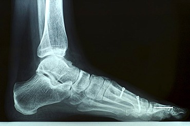 X-ray photo of a left foot after bunion surgery with screws and other hardware