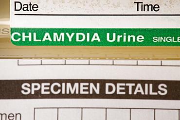 A Chlamydia self testing kit, United Kingdom, Europe