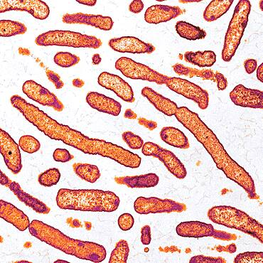 Elizabethkingia anophelis, Bacteria, TEM