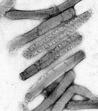 Marburg Virus, TEM