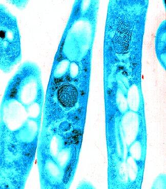 Anthrax, Bacillus anthracis Bacteria, TEM