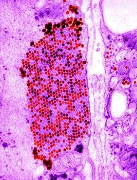 Coxsackie B3 Virus, TEM