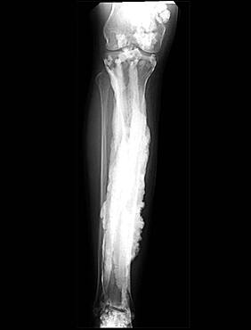 Melorheostosis Bone Disease, X-Ray