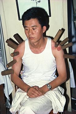 Moxibustian, China, Asia