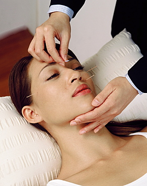 Acupuncture on face, Chinese Medicine